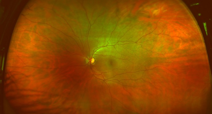 Healthy eye scan done with Optomap